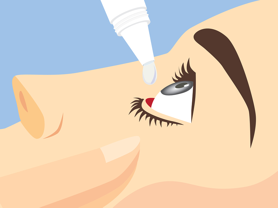 What to Know About Dry Eye and Cataract Surgery