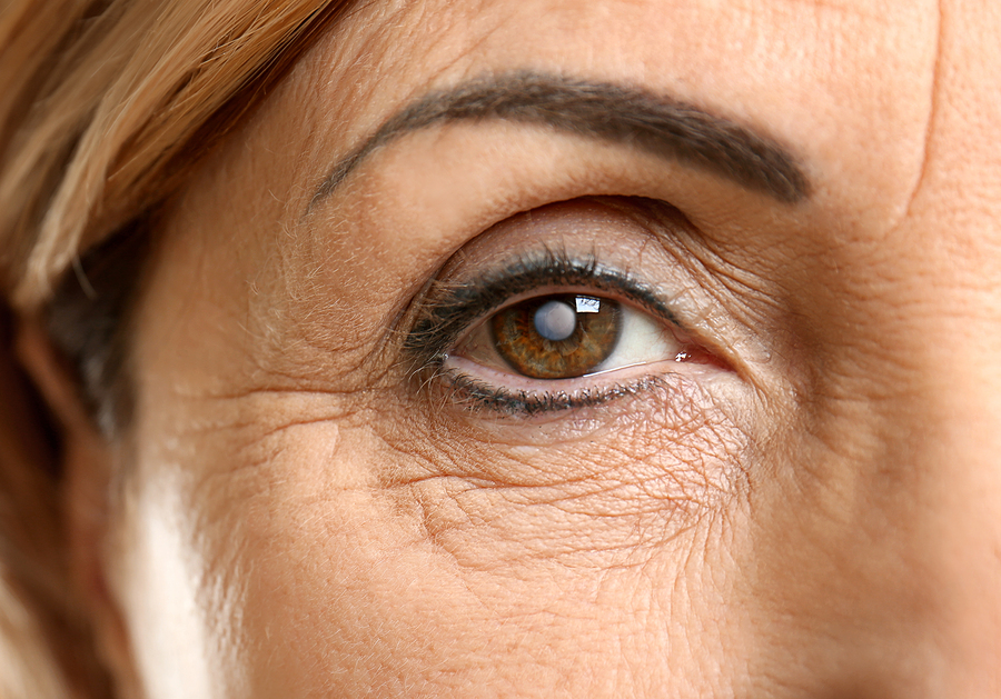 7 Early Signs of Cataracts to Take Seriously