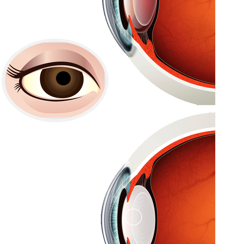 The What, Who, Why and How of Cataracts