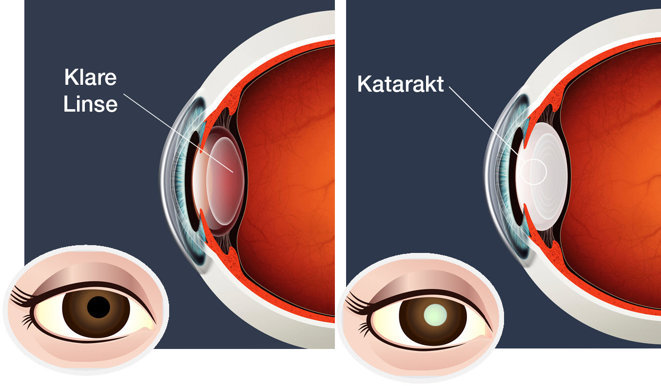 How Our Eyes Work