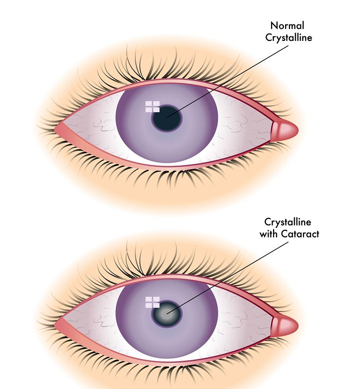 What is an Intraocular Lens? Why is it used for Cataracts?