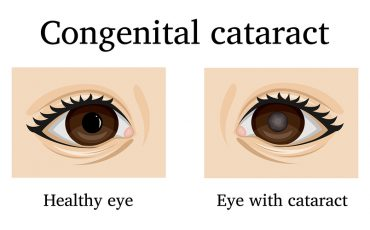 What Are Congenital Cataracts Ic 8 Lens