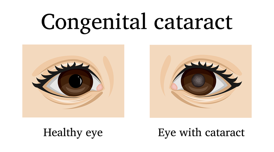 What Are Congenital Cataracts?