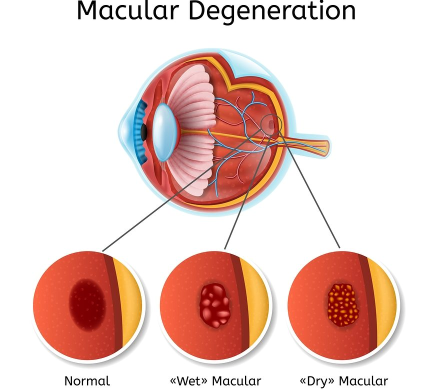 What to Know About Cataract Surgery and Macular Degeneration