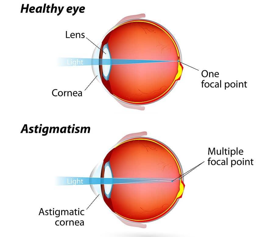 Cataract Surgery and Irregular Astigmatism